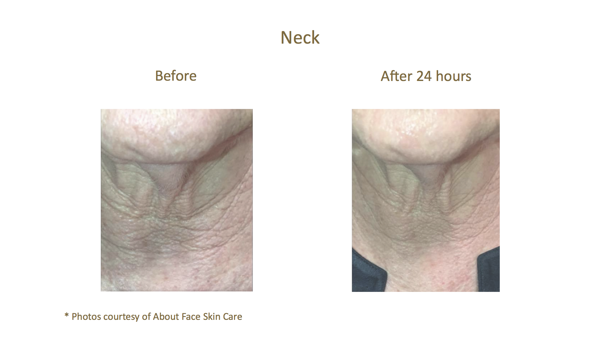 Before & After_About Face Skin Care