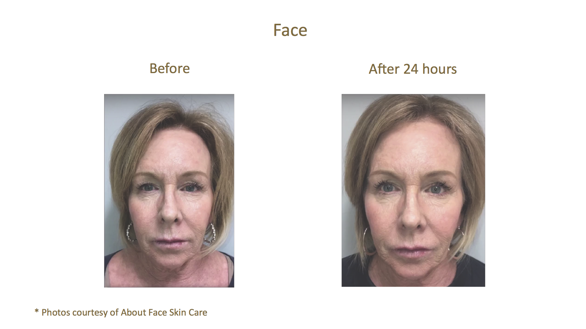 Before & After_About Face Skin Care_Face