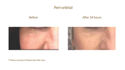 Before & After_About Face Skin Care_V2