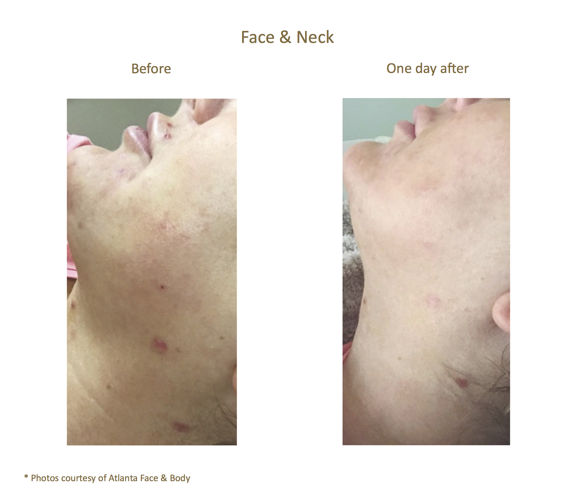 Before & After_Atlanta Face & Body_Acne