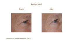 Before & After_Dr Mary Lupo_v2
