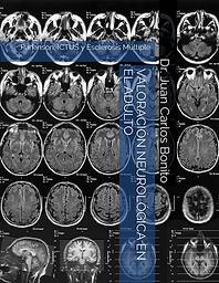 GUÍA VALORACIÓN NEUROLÓGICA EN EL ADULTO