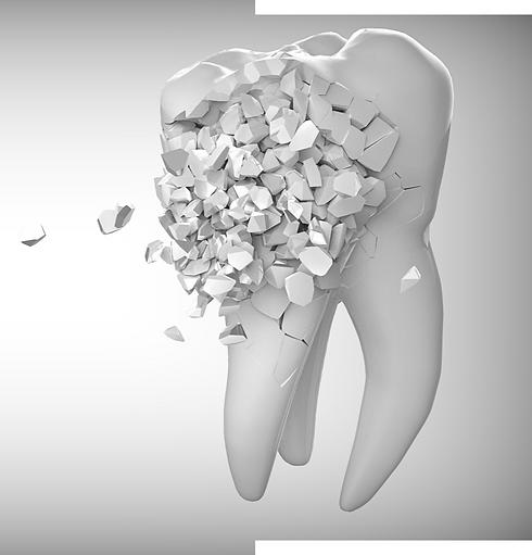 Zahn der sich zusammensetzt