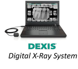 Dexis Digital x-ray system