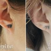 lobe before after.jpg