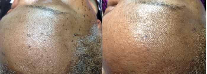 spot forehead