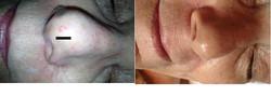 spot nose