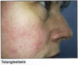 broken capillaries on face, dilated capillaries