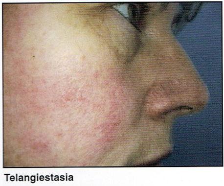 broken capillaries on face, dilated capillaries
