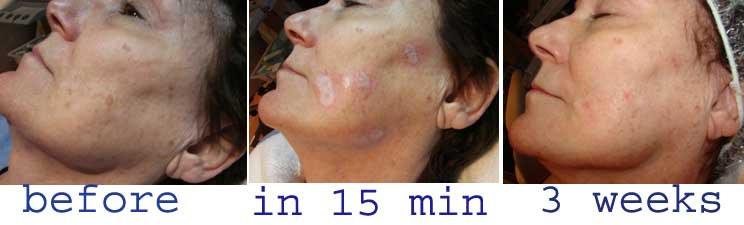 brown spot treatment