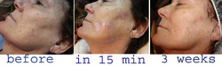 brown spot treatment