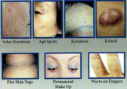 cryotherapy, age spot, wart, ski tags, brown pigmentation, acne, scars