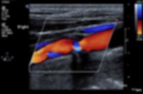 r-bulb-ulcer-plq6_237_cropped.jpg