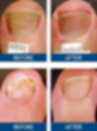 Before/After Laser Toenail