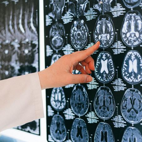 ASMR Üzerine Bir fMRI Araştırması