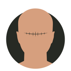 treatment_icons_Inkd_SMP3.png