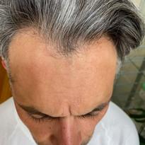 Men's Density treatment