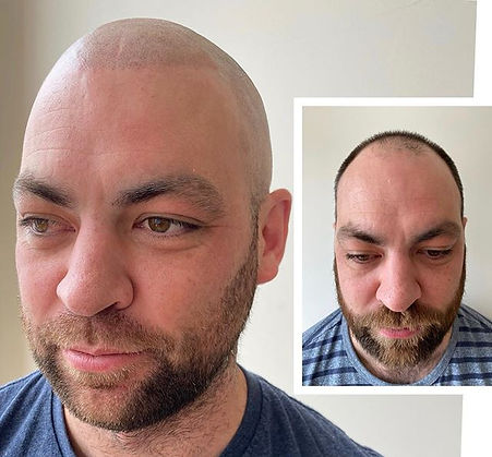 New Hairline. New Confidence. New Look �