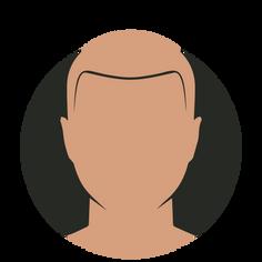 Hairline restoration