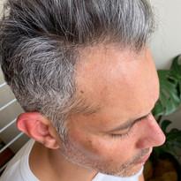Scalp Micropigmentation Hair Tattoo