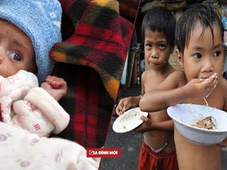 Phương pháp điều trị suy dinh dưỡng mới mở ra cơ hội sống cho 200 triệu trẻ em