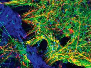 """Các nhà khoa học Mỹ nuôi được """"bộ não mini"""" sống tới 9 tháng trong ống nghiệm"""
