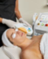 IPL Vascular Therapy In-Use 01.jpg