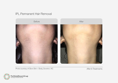 IPL-Hair-Removal-Before-After-02-1.jpg