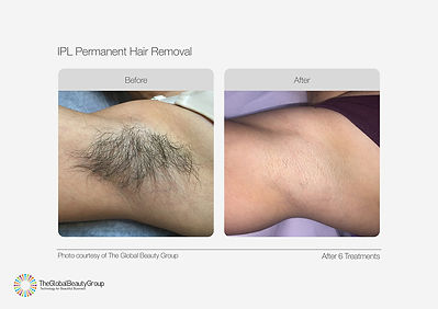 IPL-Hair-Removal-Before-After-03.jpg