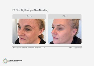 RF Skin Tightening Before & After 06(1).