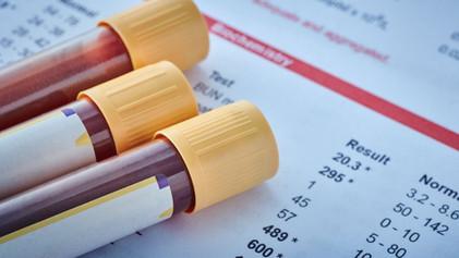 Liver Function Blood Tests