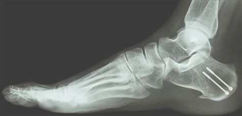 calcaneal-fracture.png