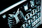 zebra-medical-artificial-intelligence-co