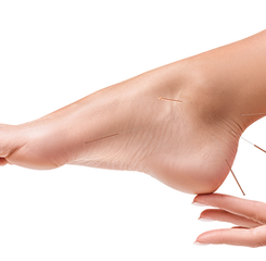 Acupucture Treatment Pictures - Chevonne Kord Acupuncture