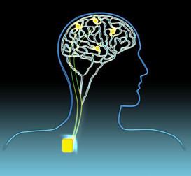 Connaissez-vous la stimulation cérébrale profonde?