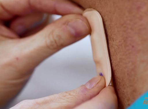 Rémission à la suite d'un AVC : des capteurs électroniques à fleur de peau