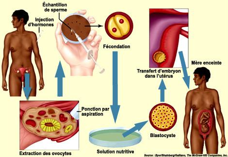Les étapes typiques de la fécondation in vitro
