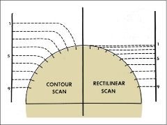 La réelle singularité du Saskatoon Brain Scanner (SBS), sera bien sûr sa rotondité qui permettait aux multiples émetteurs rayons X d'épouser à angle droit chaque millimètre de l'encéphale. Mais le SBS, au milieu de toutes les avancées qui se faisaient aussi simultanément à travers le monde, fut également parmi les premiers appareils à faire usage d'isotopes, si bien que l'on aura coutume de l'appeler « the first automatic isotope scanner ». Source : Images of the NEURO par William Feindel