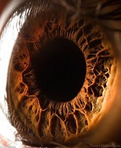 Un appareil portatif pour évaluer rapidement le degré d'une blessure à l'œil