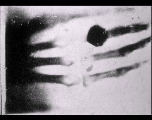 Il y a 121 ans, la première radiographie