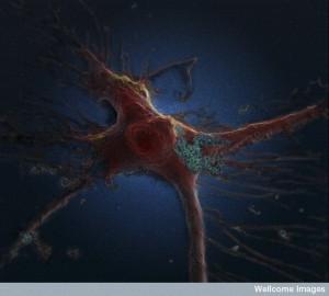 Une astrocyte, cellule gliale du système nerveux central, en train d'absorber des ''nano-aiguilles'' de carbone. La cellule mesure 20 micromètres et les nano-aiguilles quelques nanomètres de diamètre. Crédit : Khuloud T. Al-Jamal, Serene Tay & Michael Cicirko, Wellcome Images