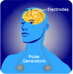 Installation of electrodes and pulse generators