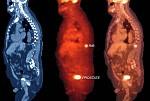 Innovation dans la détection du cancer de la prostate
