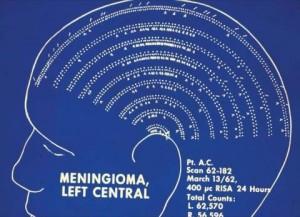 Voici le genre d'image, plutôt composée de points que de pixels, qui permettaient d'illustrer, en 1962, la présence dans la partie centrale de l'encéphale d'un méningiome. Source : Images of the NEURO par William Feindel
