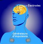 Installation des électrodes et des générateurs d'impulsions