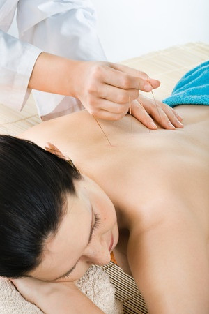 Acupuncture Does a Body Good