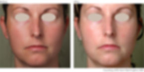 BeforeAfter3-Photorejuvenation-Courtesy-