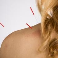 acupuncture-shoulder.jpg