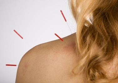 acupuncture-shoulder.jpg