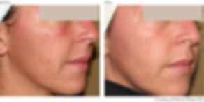 BeforeAfter1-Photorejuvenation-Courtesy-